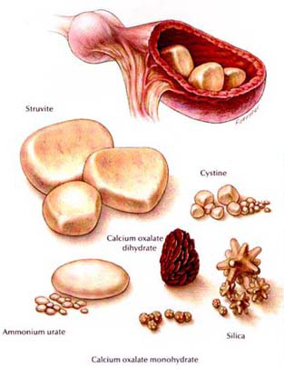 Kidney Stones Dogs Home Treatment